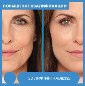 Курсы косметологии 3d лифтинг Radiesse