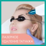 PERM_Laser